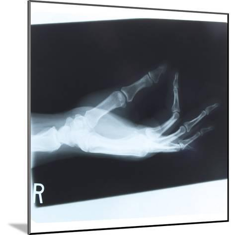 Black and White X-Ray Photograph of Hand of Person--Mounted Photographic Print