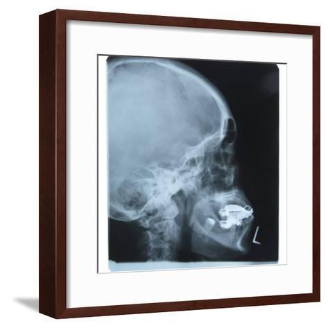 Black and White X-Ray Photograph of Head and Neck of Person--Framed Art Print