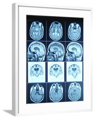 Blue Rows of Cat Scan Images of the Brain--Framed Art Print