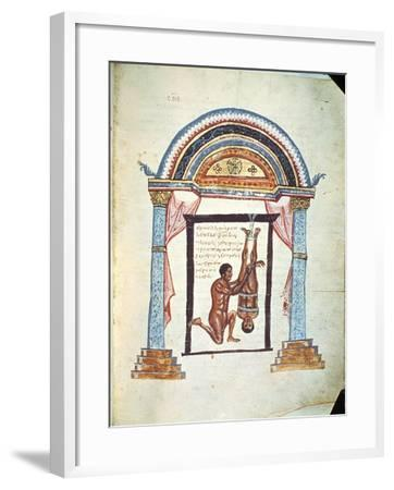 """Treatment of a Dislocation, from a Commentary on the Hippocratic Treatise """"On Joints""""--Framed Giclee Print"""