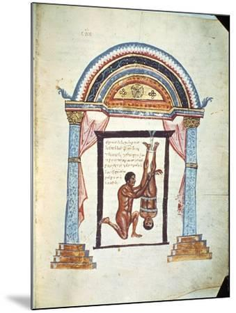 """Treatment of a Dislocation, from a Commentary on the Hippocratic Treatise """"On Joints""""--Mounted Giclee Print"""