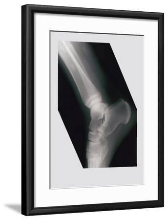 Ankle--Framed Art Print