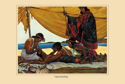 Trephining-Robert Thom-Stretched Canvas Print