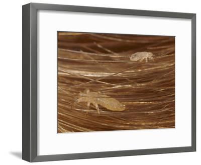 Head Lice Crawling Through Hair-Darlyne A^ Murawski-Framed Photographic Print