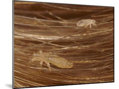 Head Lice Crawling Through Hair-Darlyne A^ Murawski-Mounted Photographic Print