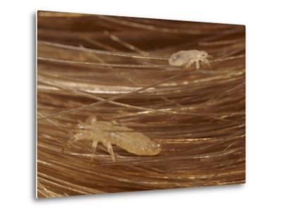 Head Lice Crawling Through Hair-Darlyne A^ Murawski-Metal Print