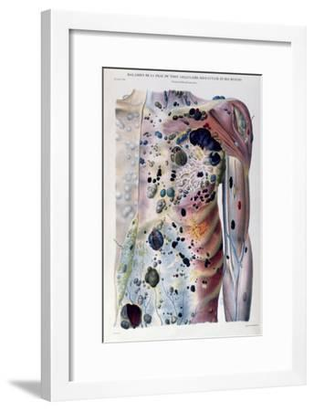 Tumours and Cancerous Tubercles, from Anatomie Pathologique du Corps Humain by Jean Cruveilhier-Antoine Chazal-Framed Giclee Print