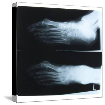 Black and White X-Ray Photograph of Feet of Person--Stretched Canvas Print