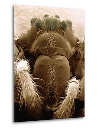 Microscopic View of Black Widow-Jim Zuckerman-Metal Print