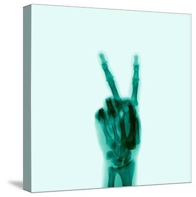 X-Ray of Hand Doing Peace Sign-D. Arky-Stretched Canvas Print