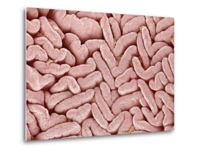 Duodenum Villi from a Rat-Micro Discovery-Metal Print
