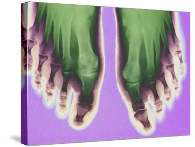 X-ray of Feet--Stretched Canvas Print