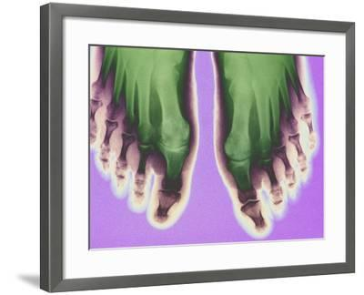 X-ray of Feet--Framed Premium Photographic Print