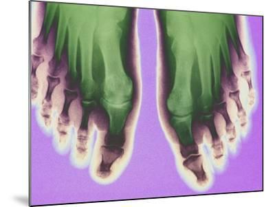 X-ray of Feet--Mounted Premium Photographic Print