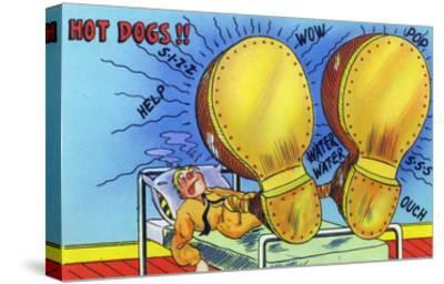 Hot Dogs, Soldier with Sore, Enlarged Feet-Lantern Press-Stretched Canvas Print