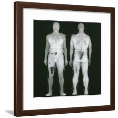 X-ray Views of Man During BodySearch Surveillance--Framed Giclee Print