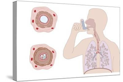 Asthma Pathology And Treatment, Diagram-Peter Gardiner-Stretched Canvas Print