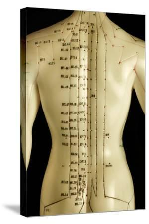 Chinese Acupuncture Model-Doncaster and Bassetlaw-Stretched Canvas Print