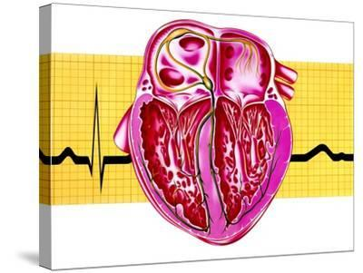 Artwork of Sectioned Heart with Healthy ECG Trace-John Bavosi-Stretched Canvas Print