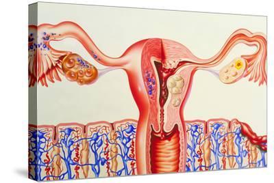 Female Reproductive Diseases-John Bavosi-Stretched Canvas Print