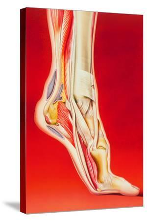 Artwork Showing Calcaneal Spur And Foot Pain-John Bavosi-Stretched Canvas Print
