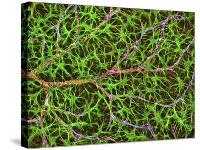 Retina Blood Vessel And Nerve Cells-Thomas Deerinck-Stretched Canvas Print