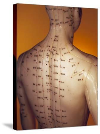 Acupuncture Model-Lawrence Lawry-Stretched Canvas Print