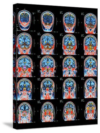 Healthy Brain, MRI Scans-Science Photo Library-Stretched Canvas Print