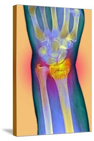 Broken Wrist, X-ray-Du Cane Medical-Stretched Canvas Print
