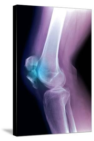 Kneecap Fracture, X-ray-Du Cane Medical-Stretched Canvas Print