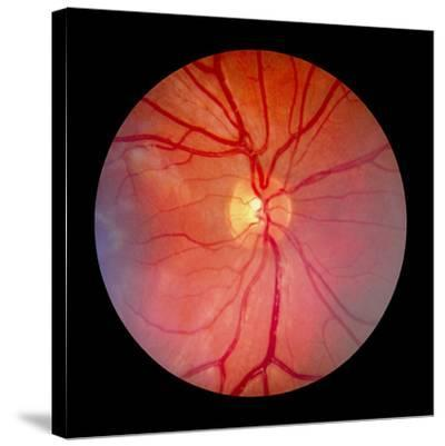 Normal Retina of Eye-Rory McClenaghan-Stretched Canvas Print
