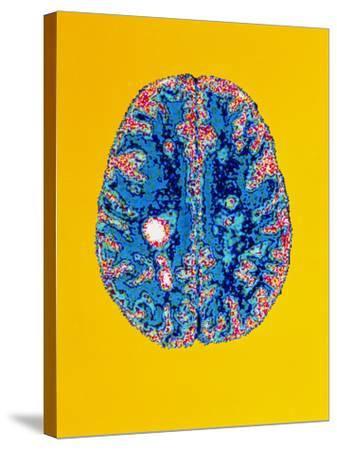 Col. MRI Scan of a Brain with Multiple Sclerosis-Science Photo Library-Stretched Canvas Print