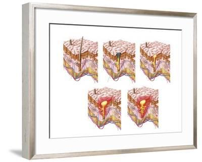 Different Types of Acne, Non-Inflammatory and Inflammatory--Framed Art Print