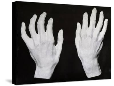 Cast of the Hands of Ferruccio Busoni--Stretched Canvas Print
