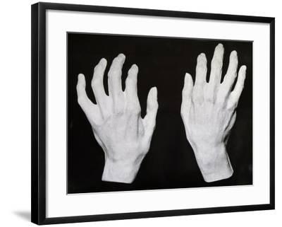 Cast of the Hands of Ferruccio Busoni--Framed Giclee Print
