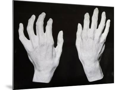 Cast of the Hands of Ferruccio Busoni--Mounted Giclee Print