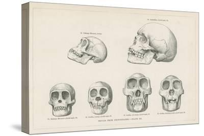 Skulls from Photographs--Stretched Canvas Print