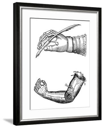 Artificial Limbs, 1510-1590--Framed Giclee Print