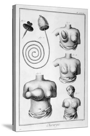 Breast Surgery, 1751-1777-Denis Diderot-Stretched Canvas Print
