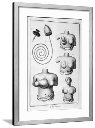 Breast Surgery, 1751-1777-Denis Diderot-Framed Giclee Print