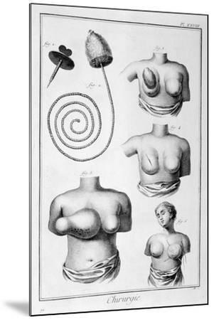 Breast Surgery, 1751-1777-Denis Diderot-Mounted Giclee Print