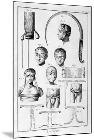 Surgery, 1751-1777-Denis Diderot-Mounted Giclee Print
