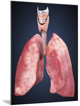 Three Dimensional View of Human Lungs-Stocktrek Images-Mounted Art Print