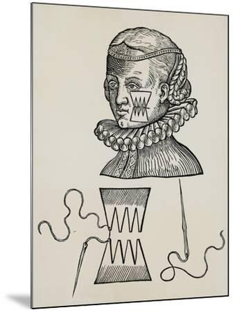 Wound to Cheek Treated with Plasters to Prevent Traces of Stitch Marks on Skin, 1579,--Mounted Giclee Print