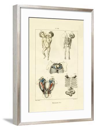 Freak, 1833-39--Framed Giclee Print