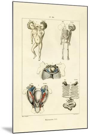 Freak, 1833-39--Mounted Giclee Print