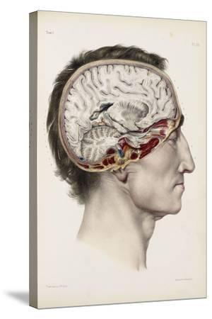 A Hand Coloured Lithograph of a Dissected Head in Profile Showing the Brain-Nicolas Henri Jacob-Stretched Canvas Print