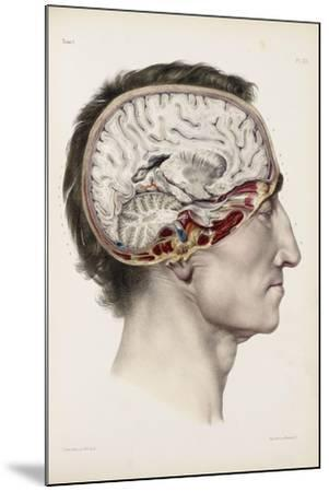 A Hand Coloured Lithograph of a Dissected Head in Profile Showing the Brain-Nicolas Henri Jacob-Mounted Giclee Print
