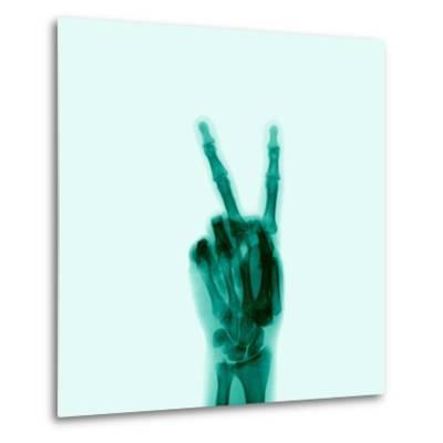 X-Ray of Hand Doing Peace Sign-D. Arky-Metal Print