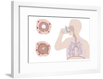 Asthma Pathology And Treatment, Diagram-Peter Gardiner-Framed Photographic Print
